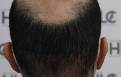 До пересадки волос. Сильное поредение темени. Вид сзади.