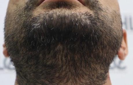 До пересадки волос мужчине. Донорская область бороды.