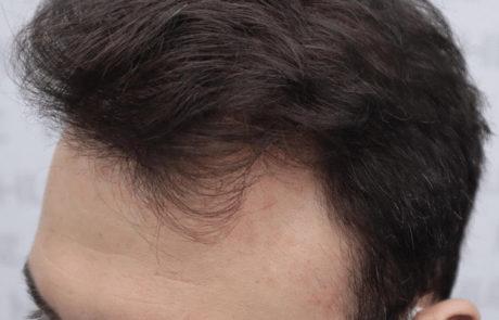 Через 8 месяцев после пересадки, густота передней линии волос