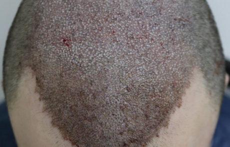 Сразу после пересадки 4300 графтов волос мужчине, вид сверху