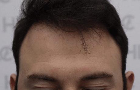 Через 8 месяцев после пересадки 4300 графтов волос, вид спереди