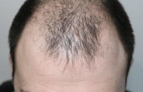 До пересадки волос мужчине, вид на волосы сверху
