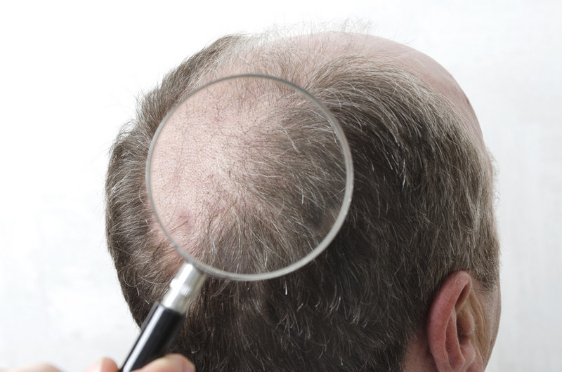 трихолог изучает область выпадения волос у мужчины