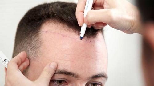 выбор клиники по трансплантации волос