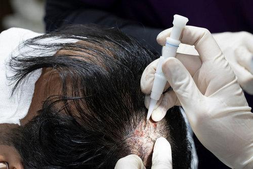 корректирующая пересадка волос