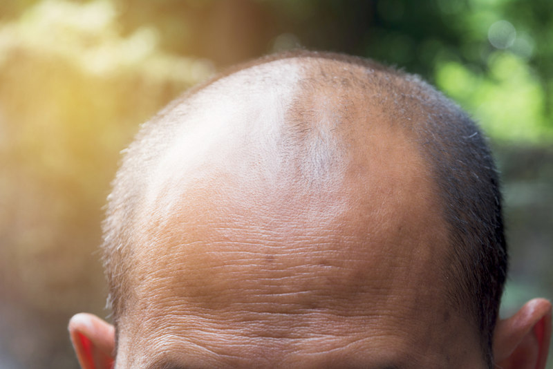 когда необходима корректирующая пересадка волос