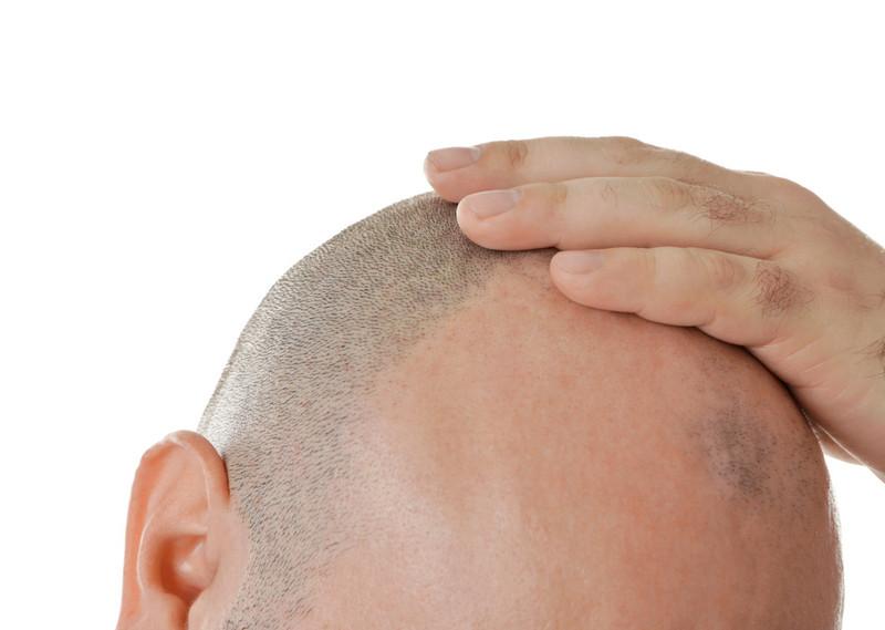 кому подходит пересадка волос с тела?