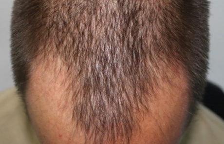 До пересадки, отчётливо видно поредение волос