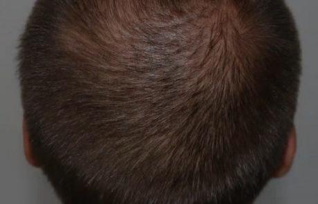 Поредение теменной зоны головы, до пересадки волос