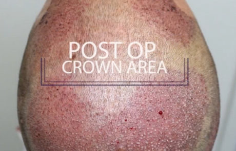 Сразу после пересадки волос на теменную зону головы