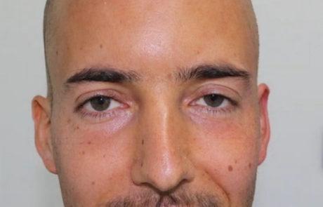 Фото результата пересадки волос на лоб-фронтальную линию