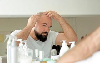 в чем суть пересадки волос с тела?