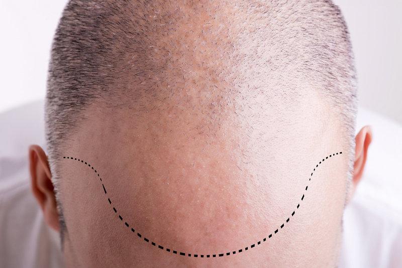как проходит пересадка волос с тела?