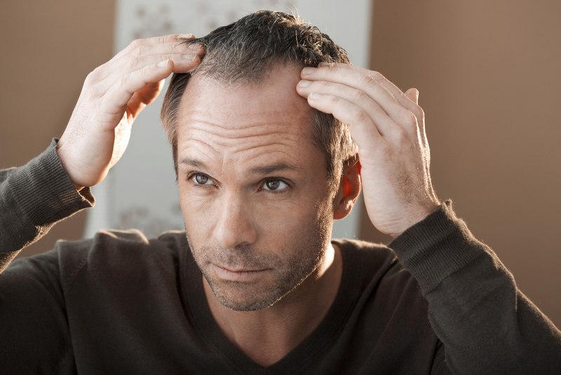 гормоны воздействуют на силу выпадения волос