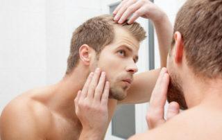 как остановить сильное выпадение волос у мужчины?
