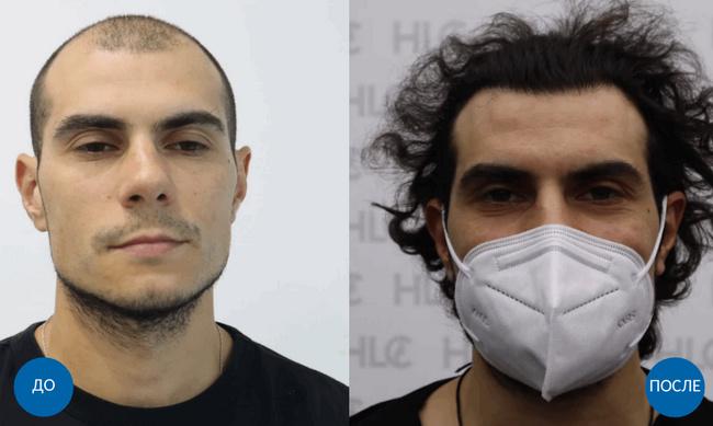 Результат пересадки 3600 графтов волос мужчине с затылка на лоб бесшовным методом FUE. Фото до и спустя 10 месяцев после операции.