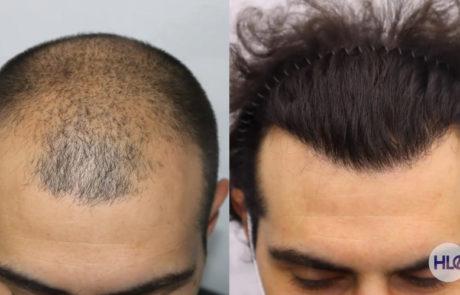 До пересадки и спустя 10 месяцев, вид передней линии