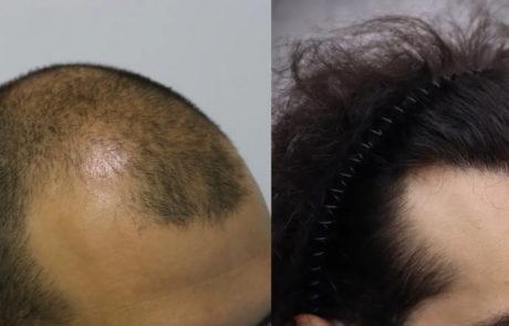 До пересадки и спустя 10 месяцев, вид справа