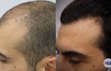 До пересадки и спустя 10 месяцев, вид слева