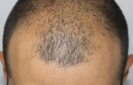 До трансплантации волос. Заметно сильное поредение передней линии и появление залысин. Вид сверху