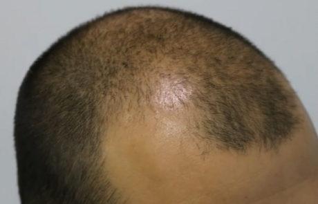 До трансплантации волос. Заметно сильное поредение передней линии и появление залысин. Вид сбоку