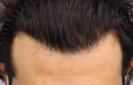 Спустя 10 месяцев после пересадки волос, вид сверху