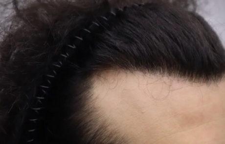 Спустя 10 месяцев после пересадки волос, вид справа
