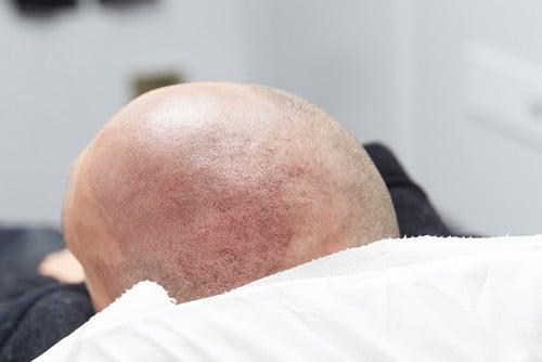 трихопигментация и пересадка волос - что выбрать?