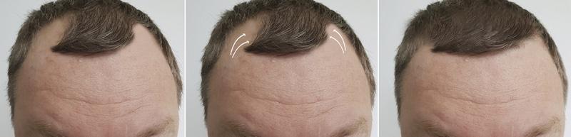 натуральность вида передней линии волос после пересадки