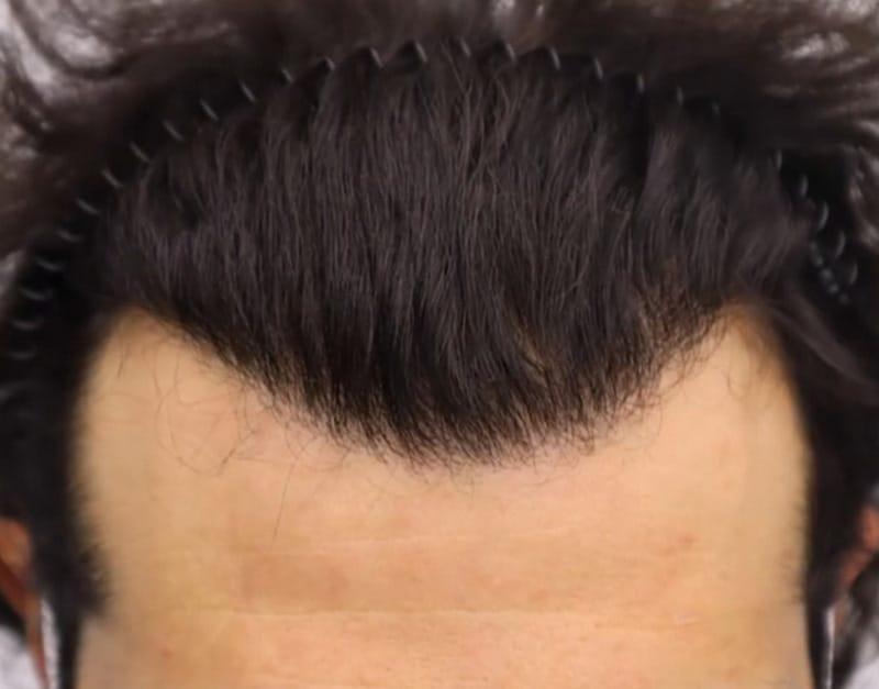фактор структуры лица при пересадке волос на краевую линию