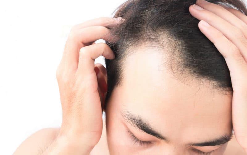 коррекция передней линии волос