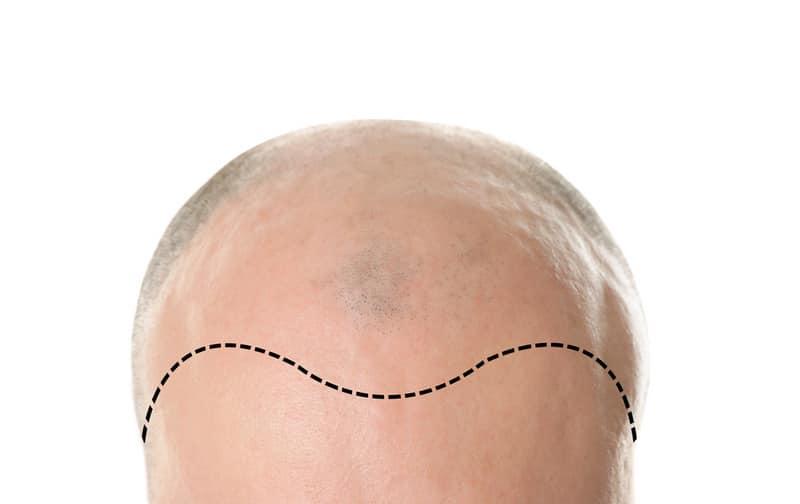 отличие шокового выпадения волос после пересадки от облысения