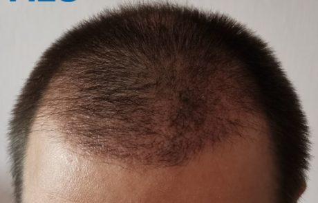 Спустя 2 месяца после пересадки. Вид передней линии роста волос.
