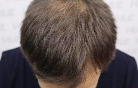 До пересадки волос мужчине, видно поредение волос на макушке. Вид сверху