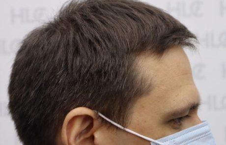 До пересадки волос мужчине, появляются залысины. Вид сбоку.