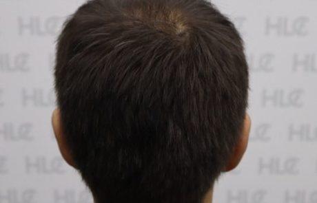 До пересадки волос мужчине, видно поредение волос на макушке. Вид сзади.