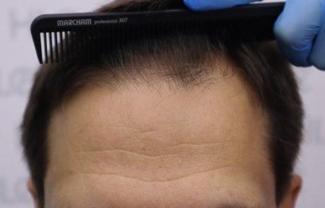 До пересадки волос мужчине, видно поредение. Вид передней линии роста волос.