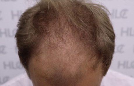 До трансплантации волос. Заметно сильное поредение передней линии и появление залысин. Вид сверху.