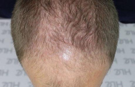 До пересадки волос мужчине, видно поредение передней линии. Вид сверху