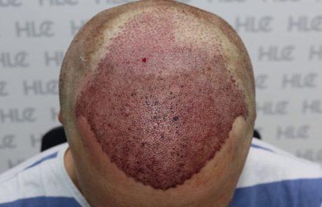 Сразу после пересадки, вид сверху на переднюю линию головы