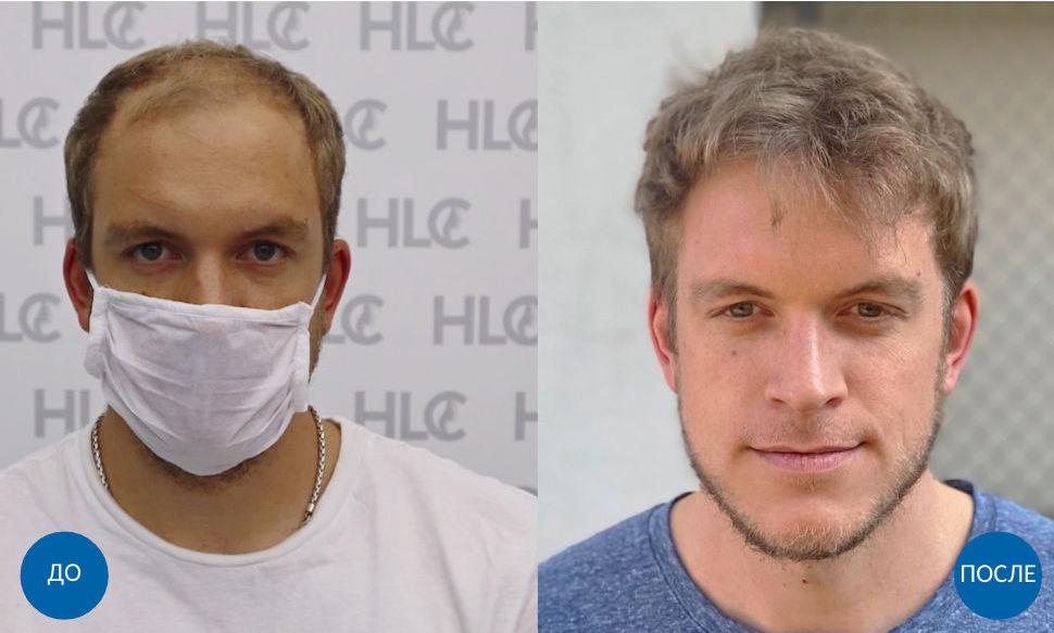 Результат пересадки 5000 графтов волос мужчине на лоб бесшовным методом FUE. Фото до и спустя 11 месяцев после операции.