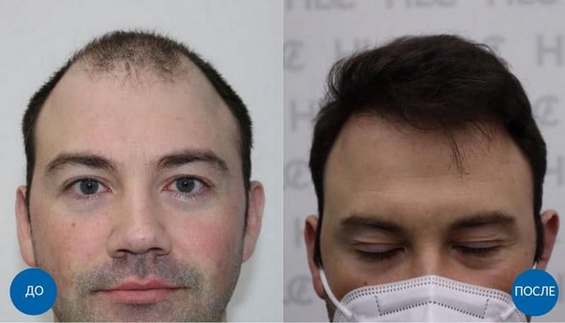 плюсы и минусы ручного метода пересадки волос
