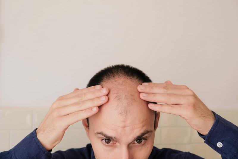 почему случается шоковое выпадение волос после пересадки?