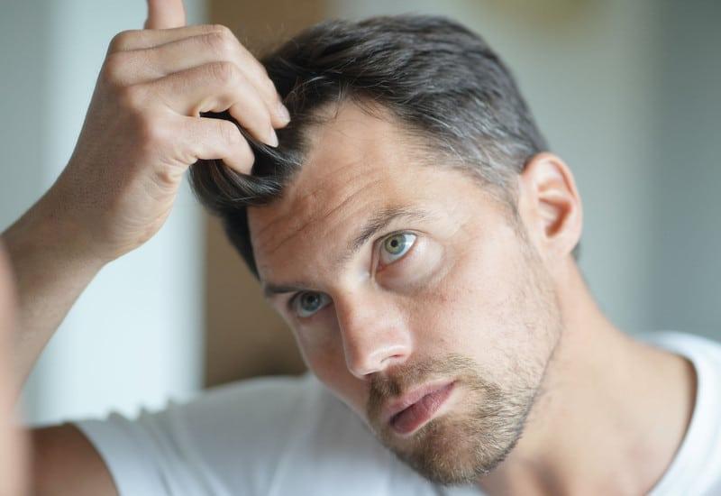 Мужчина обеспокоен выпадение волос после коронавируса
