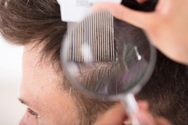 причины заболеваний волосяного покрова головы