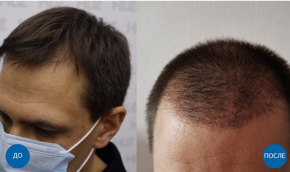Результат пересадки 3800 графтов волос мужчине на лоб бесшовным методом FUE. Фото до и спустя 2 месяца после операции.