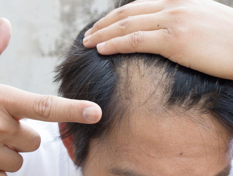 рост волос после их выпадения при гнездной алопеции