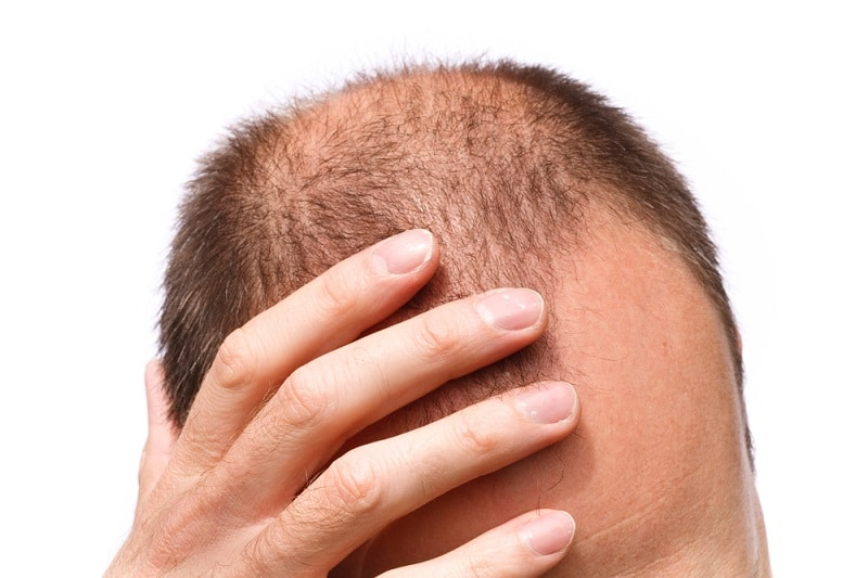 помощь росту волос после трансплантации