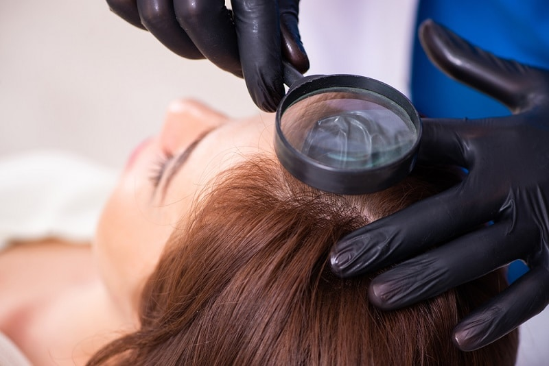 этапы роста волос после пересадки