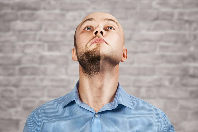 симптомы очаговой алопеции на бороде